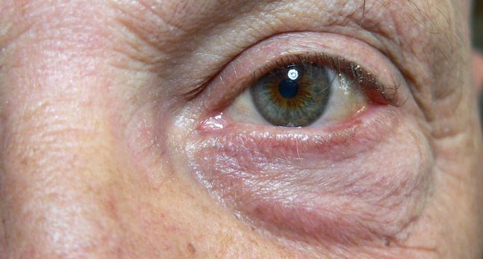Eliminare occhiaie e borse sotto gli occhi: cause e rimedi ...