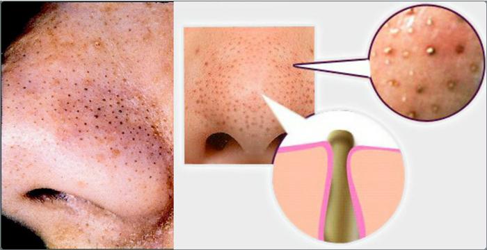 Piccoli posti sulla faccia al bambino 1 mese