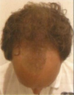 Maschera per capelli una noce di cocco organica